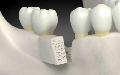 Οδοντικά εμφυτεύματα - drftouli.gr